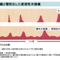 赤穂化成「海の深層水 天海(あまみ)の水 硬度1000」を用いた マグネシウムによる片頭痛予防作用